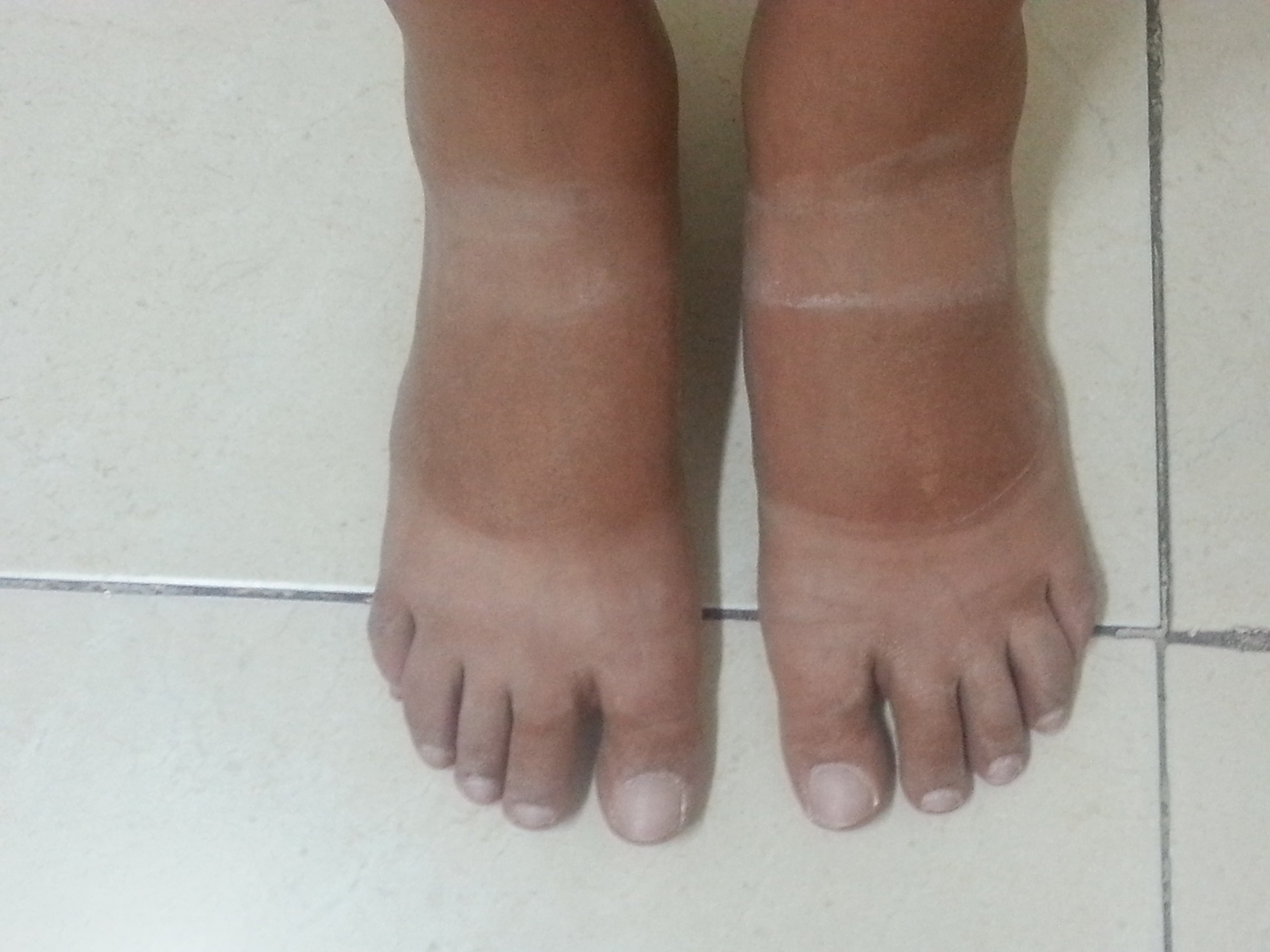 Unsexiest feet in the world